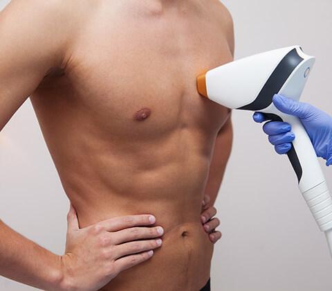 Laser Αποτρίχωση για άνδρες